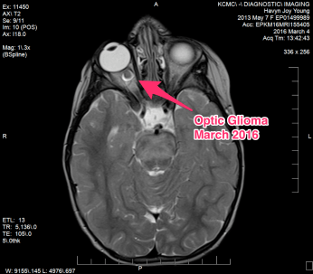 Optic Glioma - March 2016