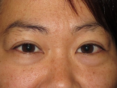 Example of eyelid blepharoplasty and ptosis repair