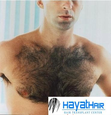 زراعة شعر الصدر في تركيا وتكثيف شعر الجسم