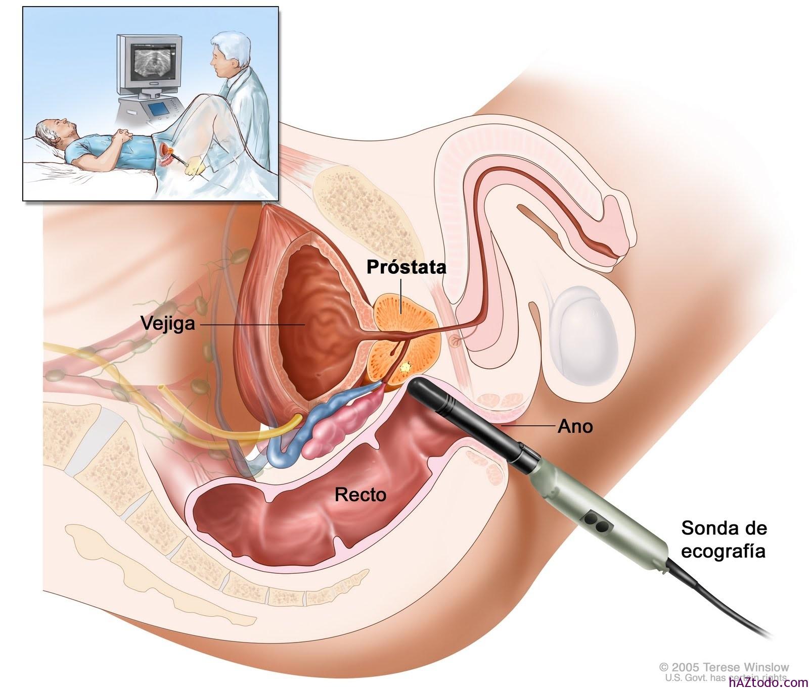 psa análisis de sangre de próstata alta 2020