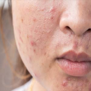 How to Remove Pimple Marks From Face in a Week