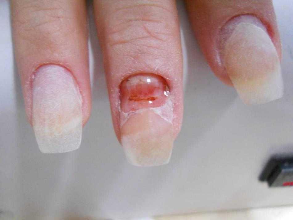 Oprava na nehty