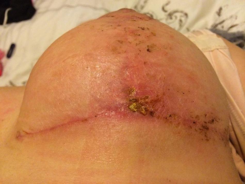 Как лечить свищи после операции