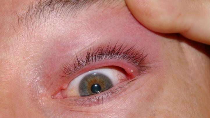 Внутренний ячмень, внутри глаза