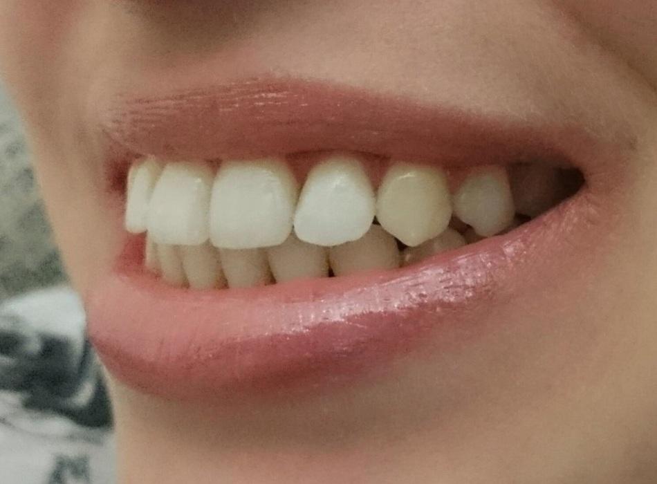 Physiognomisten beschreiben Menschen mit hervorstehenden Zähnen wie außergewöhnlich