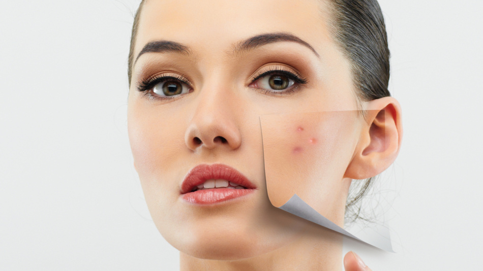 Very often after cleaning more complex acne appear