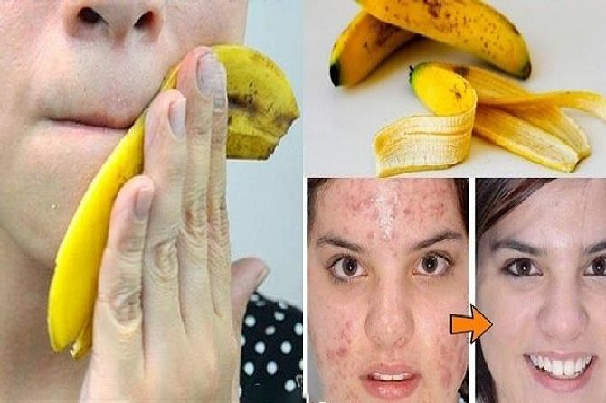 stop-throwing-away-banana-peels-10-ways-can-use_result