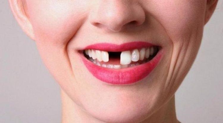 Количество выпавших зубов поможет определить оставшуюся продолжительность жизни человека