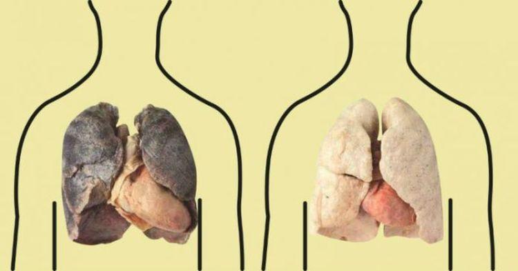 4 продукта, которые очищают легкие: курильщикам обязательно к прочтению
