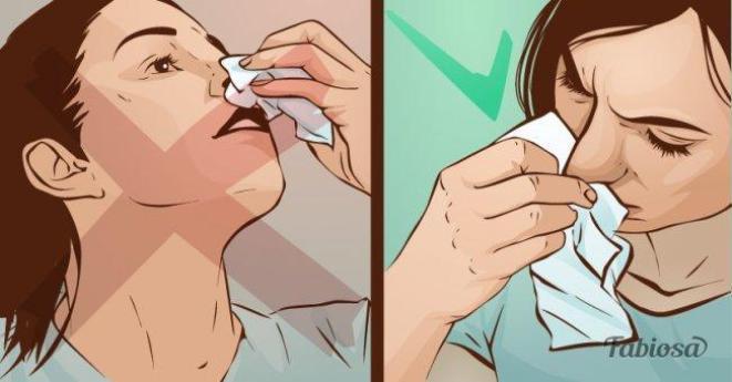 Большинство людей допускают эту ошибку, когда хотят остановить кровь из носа