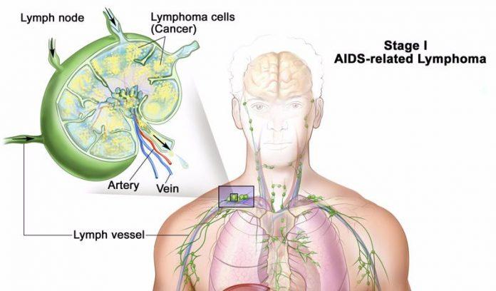 Застой лимфы приводит к многим хроническим болезням и недомоганиям! Вот так его можно предотвратить