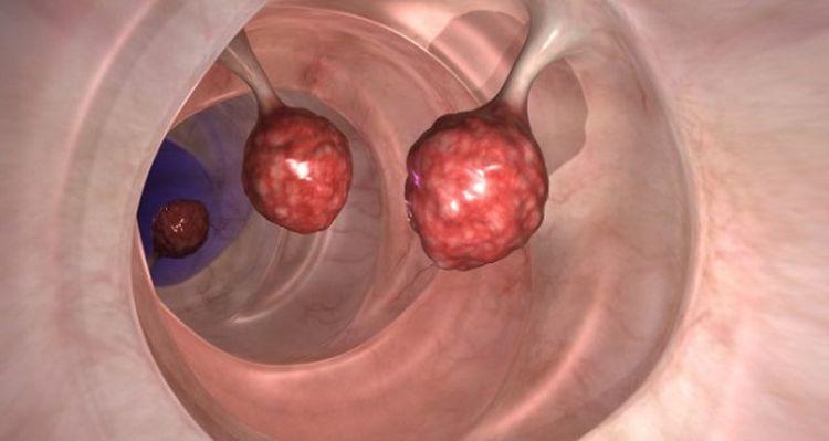 Врачи в поиске ответов, почему эта кислота убивает более 93% раковых клеток толстой кишки у человека за 48 часов