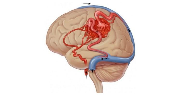 Как улучшить кровообращение мозга: 5 действенных и полезных советов