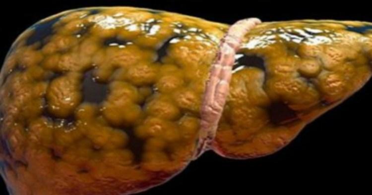 Главные признаки того, что печень нездорова и начинает заплывать жиром