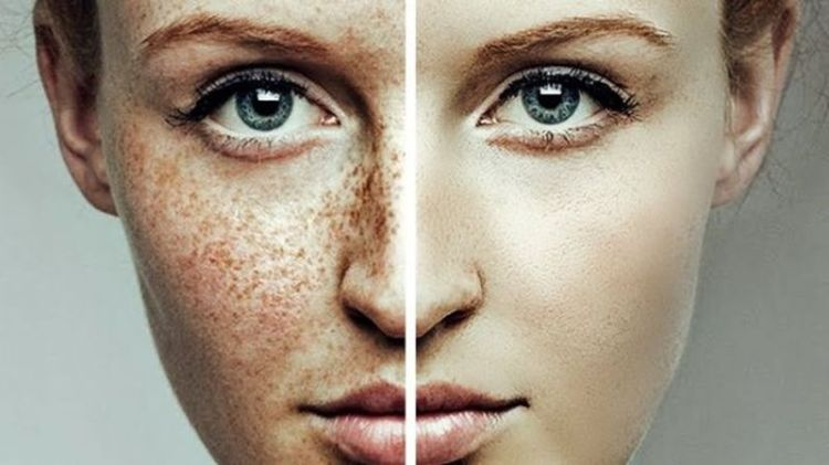 Пятнистая кожа еще не приговор: 7 рецептов масок от пигментных пятен