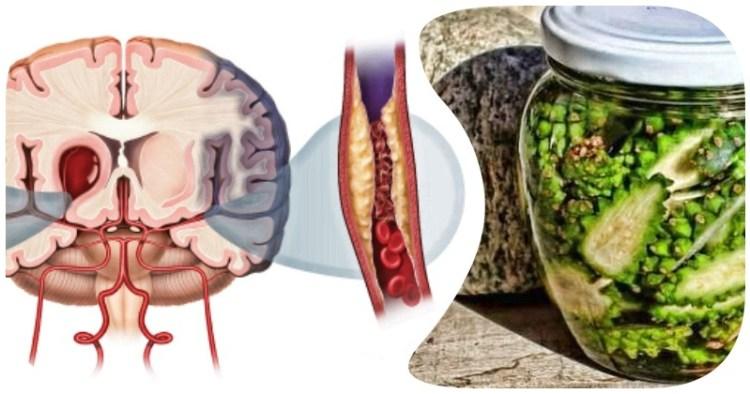 Восстановиться быстрее и сильнее: борьба с инсультом при помощи сосновых шишек