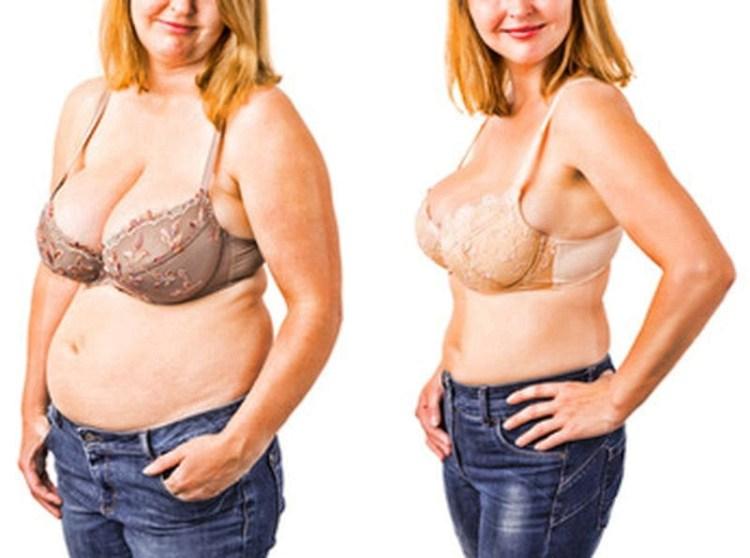 Ожирение — болезнь цивилизации, которая медленно убивает