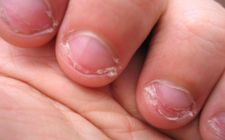 Грызете ногти? По мнению психологов, это может означать, что вы перфекционист