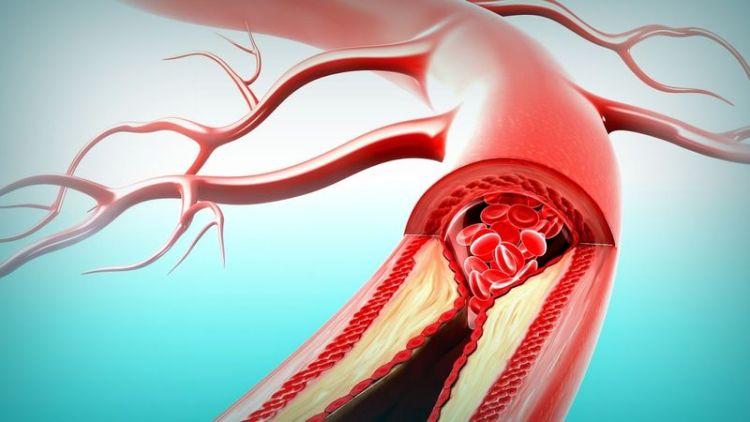 Как предупредить инсульт, атеросклероз и не угробить сердце: 10 продуктов для чистки сосудов от мусора
