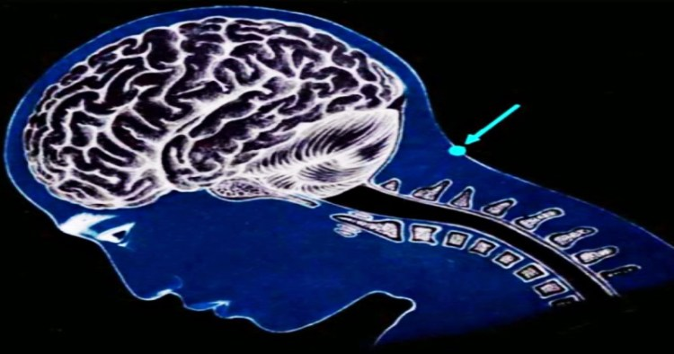 Уникальная точка Конфуция на нашей голове поможет преодолеть хронический стресс и депрессию
