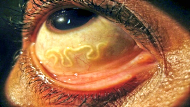 Без дорогих анализов и истерик: определяем наличие паразитов в организме по простым признакам