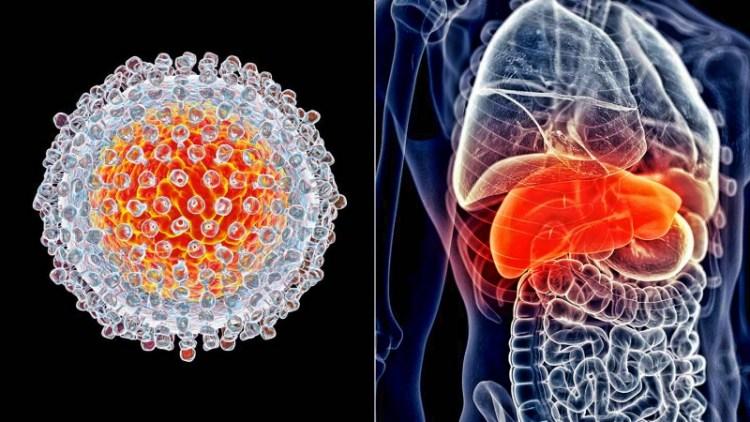 Рак печени еще не приговор: виды, симптомы и лечение болезни