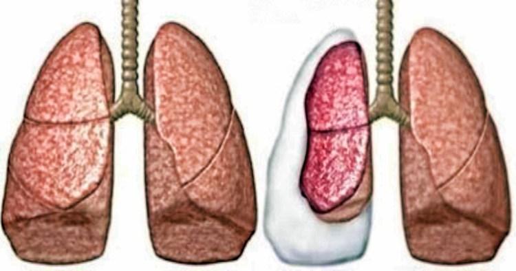 Последствия пневмоторакса лёгких