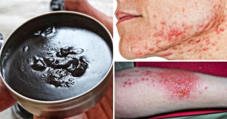 Черная мазь против кожной сыпи и заразы: выводит токсины и удаляет инородные тела
