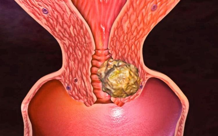 Как вовремя заметить и спастись: главные признаки рака шейки матки
