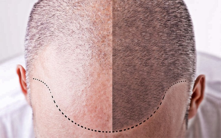 Если поредела шевелюра: 8 натуральных домашних средств от выпадения волос