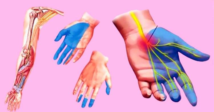 В том числе предвестник инсульта: 7 причин онемения верхних конечностей