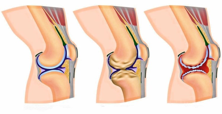 Как вылечить треск и боль в коленях с помощью натуральных продуктов
