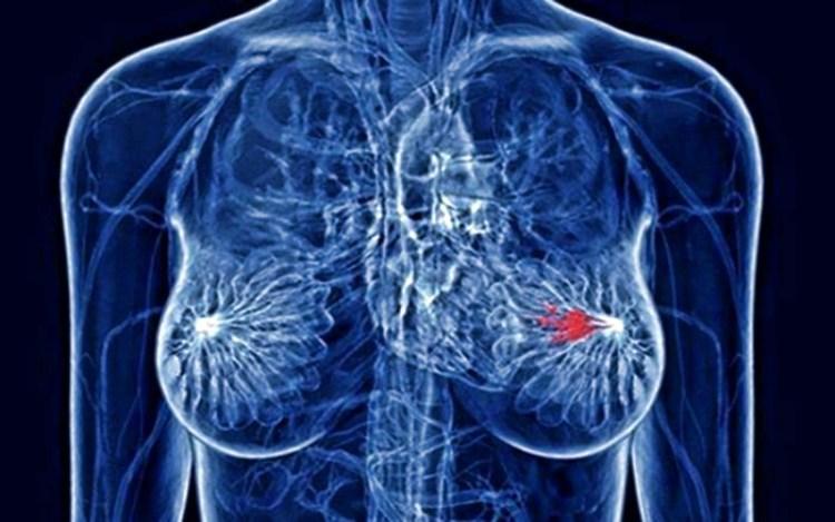 Аспирин в низкой дозировке уменьшает риск заболевания раком груди