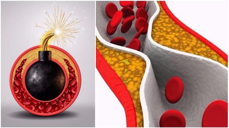Сбежит как трус: как снизить холестерин в крови при помощи народных средств