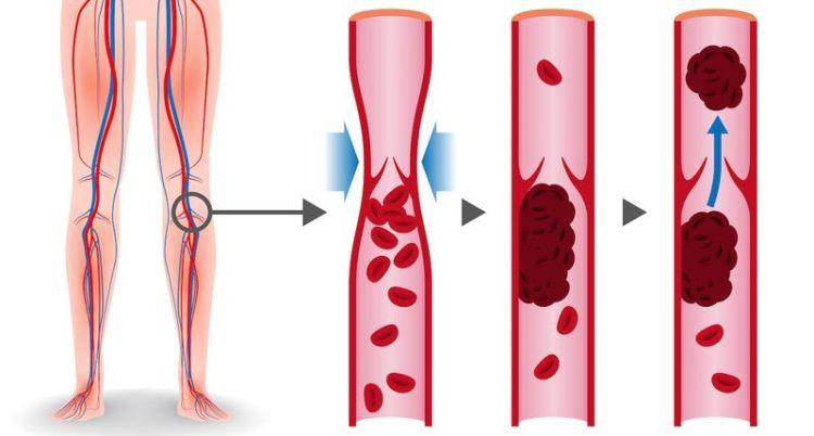 Как предотвратить тромбоз: 8 продуктов для разжижения крови
