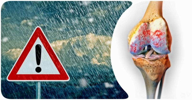 Артрит, больные суставы и погода: какая связь между ними