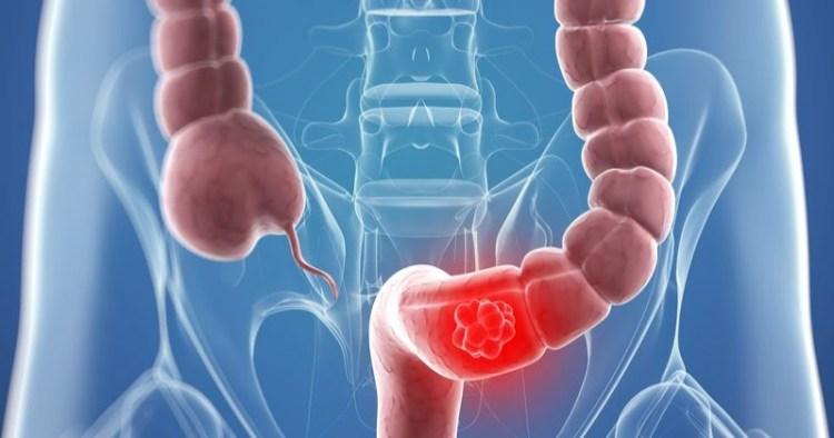 Почему болеют на рак: 15 факторов, вызывающих онкологические заболевания