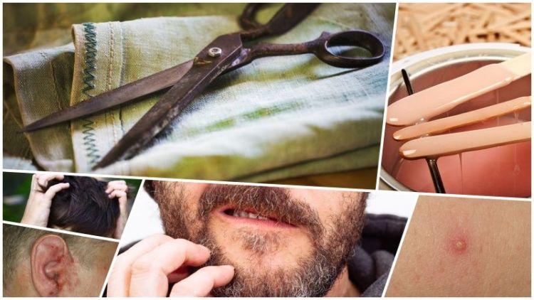 Посещая парикмахерскую, каждый мужчина рискует подхватить болезни и инфекции. Узнайте, какая опасность подстерегает мужчин в барбершопах, и как они могут себя обезопасить.