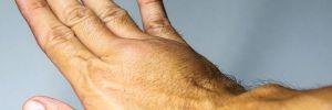 Тромб не подождет: 6 признаков, что в ваших жилах засел опасный сгусток крови