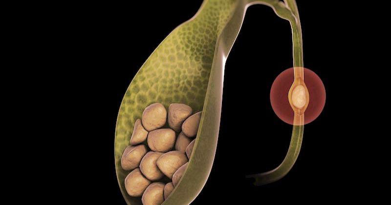 Камни в желчном пузыре и 6 продуктов-защитников от желчекаменной болезни