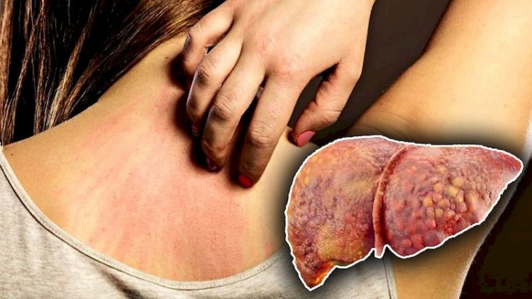 Почему и как болит печень: 10 возможных причин боли в области печени