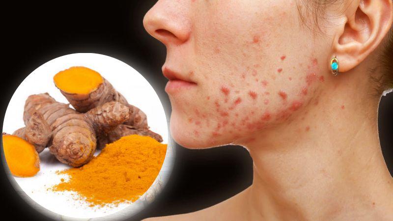 Куркума от прыщей: 10 целебных рецептов для здоровой кожи