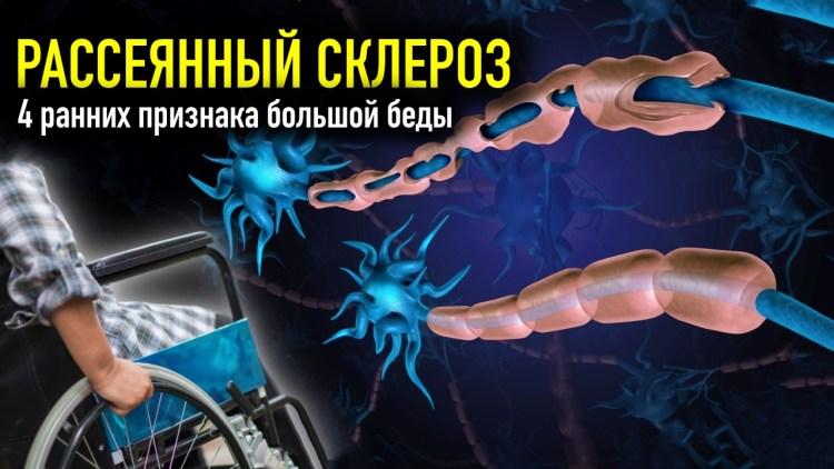 Рассеянный склероз: 4 ранних признака большой беды, которые крайне важно не пропустить