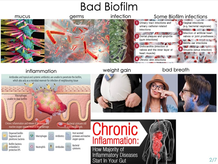 -Bad Biofilm is this really gross mucus that forms around our organs.   -Germs grow & can form 'colonies of infections' inside it   -like urinary, vaginal, dental, sinus or skin.  -Our immunity & antibiotics can't penetrate it very well.  -It can lead to terrible things like inflammation &  weight gain.