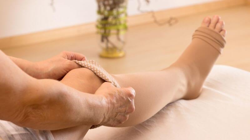 профилактика варикоза вен на ногах