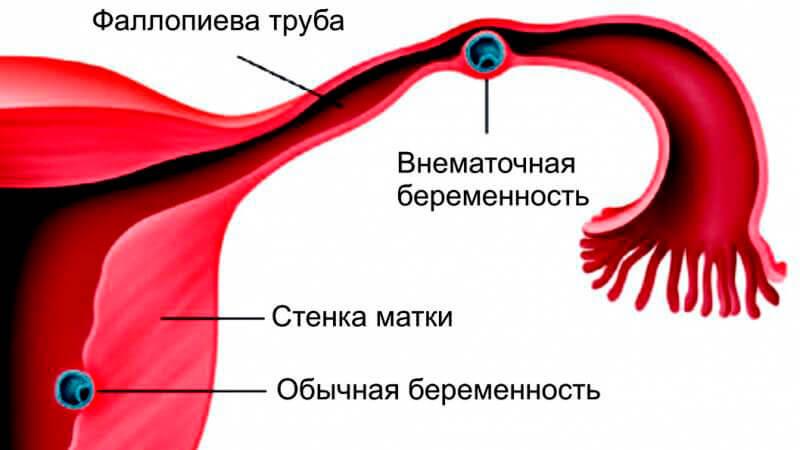 признаки внематочной беременности на ранних сроках