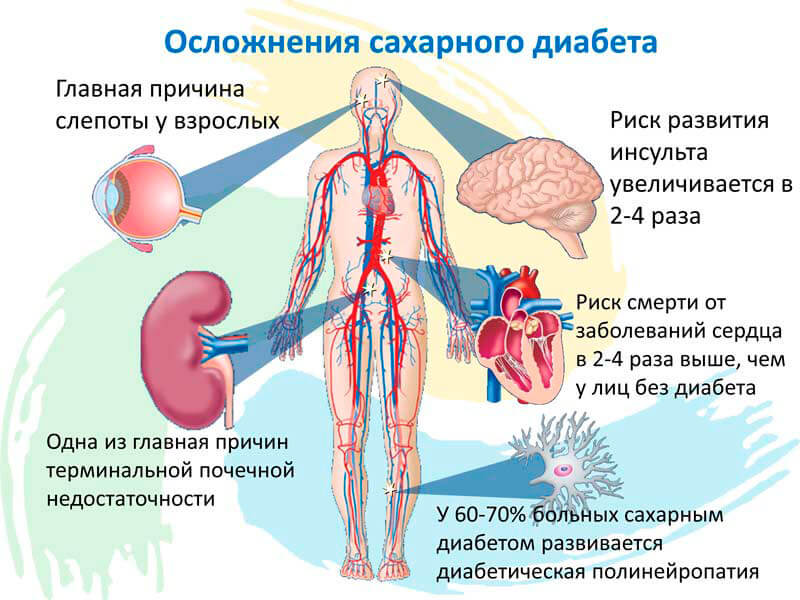 диабетическая полинейропатия что это такое