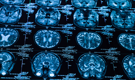 Using the brain to heal the body