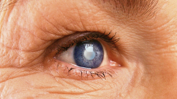7 Different Types Of Cataracts