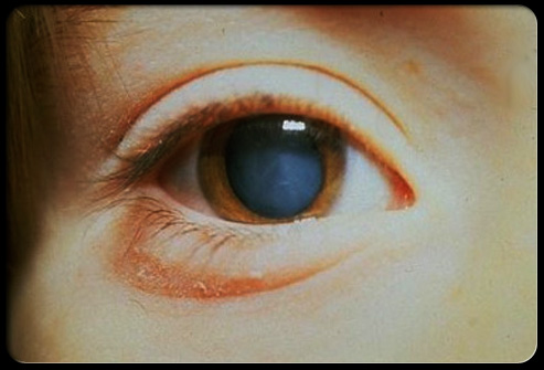Dr. Kondrot Answers: Lanosterol or Can-C, which Eye-Drop is effective in reversing Cataracts?